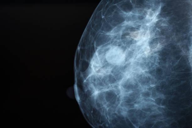 mammografie - mammografie stock-fotos und bilder