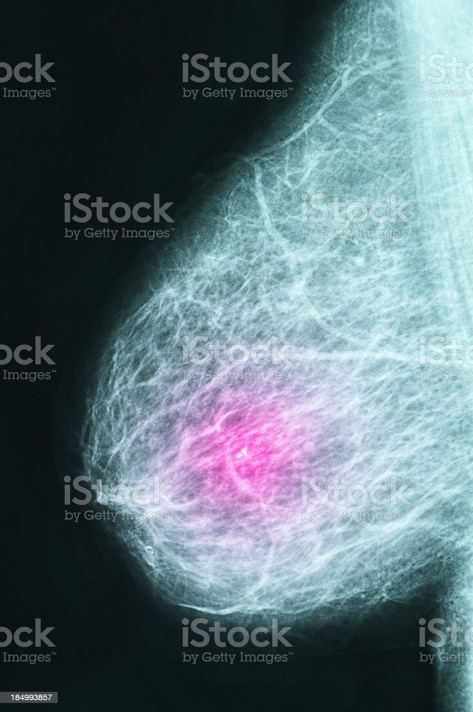 Mammogram stock photo