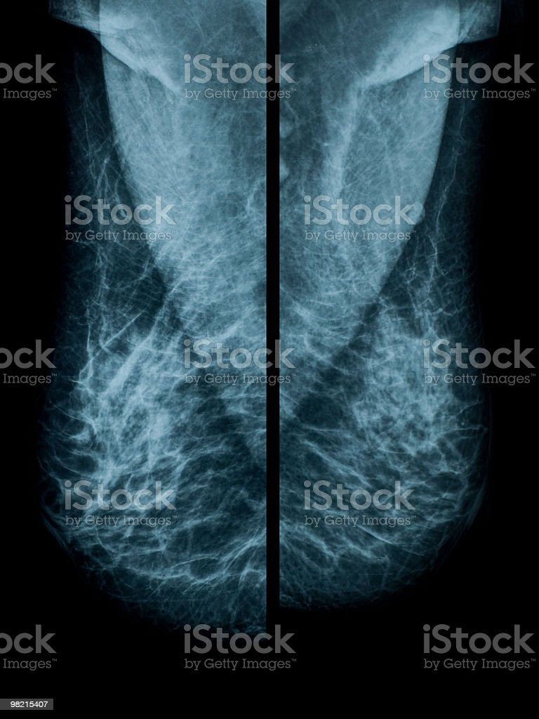 Mammogram royalty-free stock photo