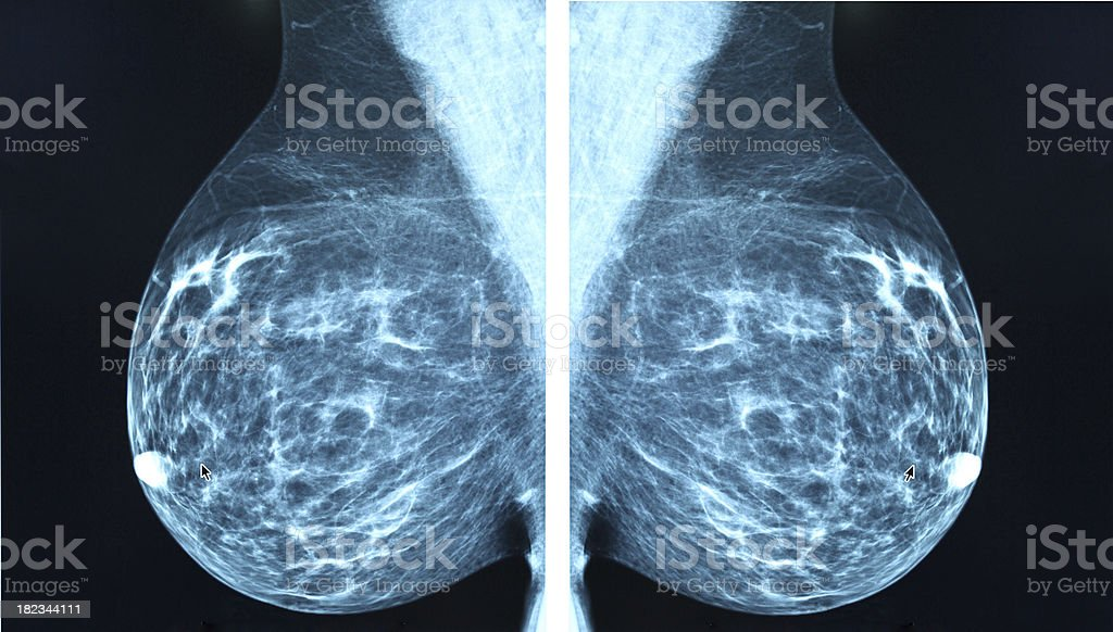Mammogram radio imagingr breast cancer diagnosis stock photo