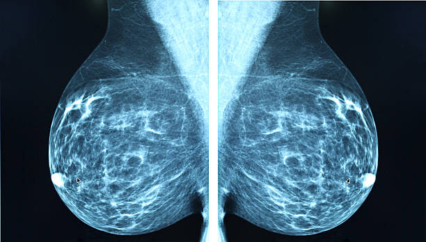 mammogram radio imagingr breast cancer diagnosis - medical scan stock photos and pictures