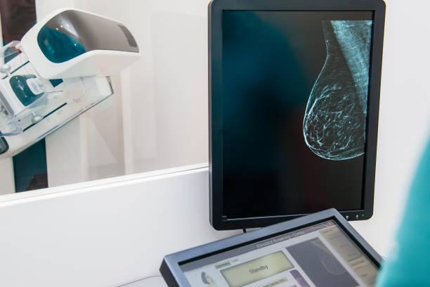 mammographie-snapshot der brüste einer patientin auf dem monitor mit derzeit mammographie testen auf dem hintergrund. selektiven fokus - mammografie stock-fotos und bilder