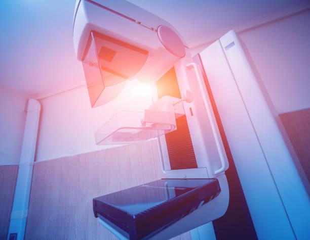 mammographie-test im krankenhaus. medizinische geräte - mammografie stock-fotos und bilder