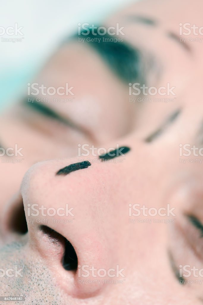 man about to have a plastic surgery stock photo