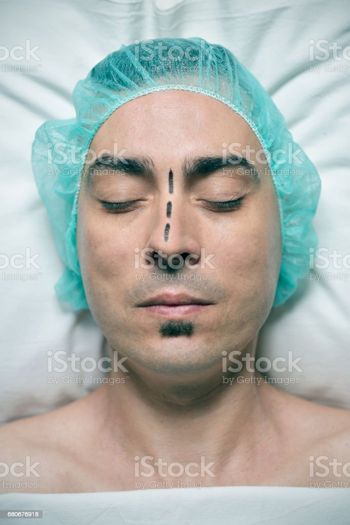 man about to have a rhinoplasty stock photo