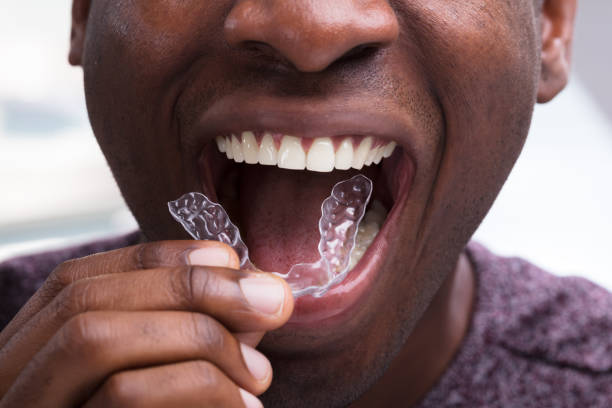 Man Adjusting Transparent Aligners In His Teeth stock photo