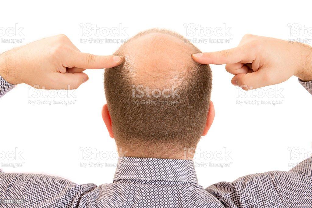 man alopecia baldness hair loss isolated stock photo