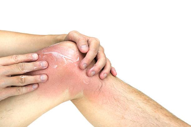 man apply lotion on sunburnt knee skin, isolated white background - sonnenbrand heilen stock-fotos und bilder