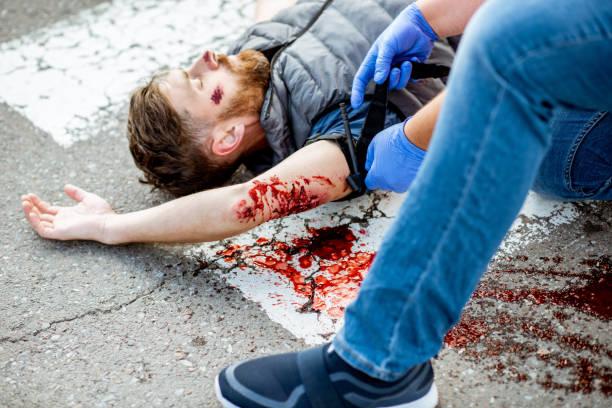 Man die eerste hulp toepast op de bloedings persoon op de weg foto