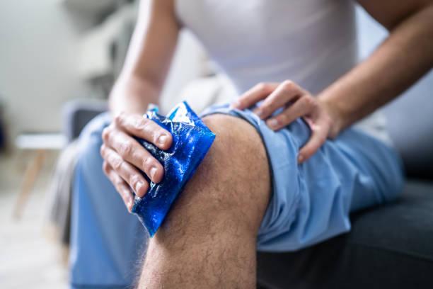uomo che applica il pacchetto gel di ghiaccio sul ginocchio - crioterapia foto e immagini stock