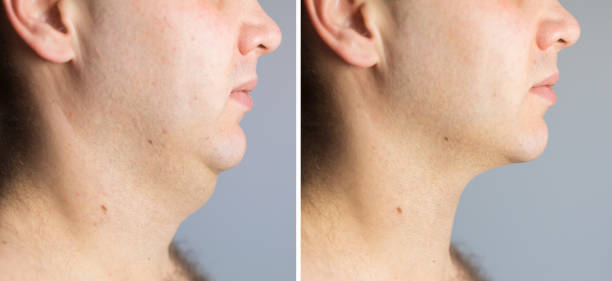 Man before and after double chin fat correction procedure stock photo