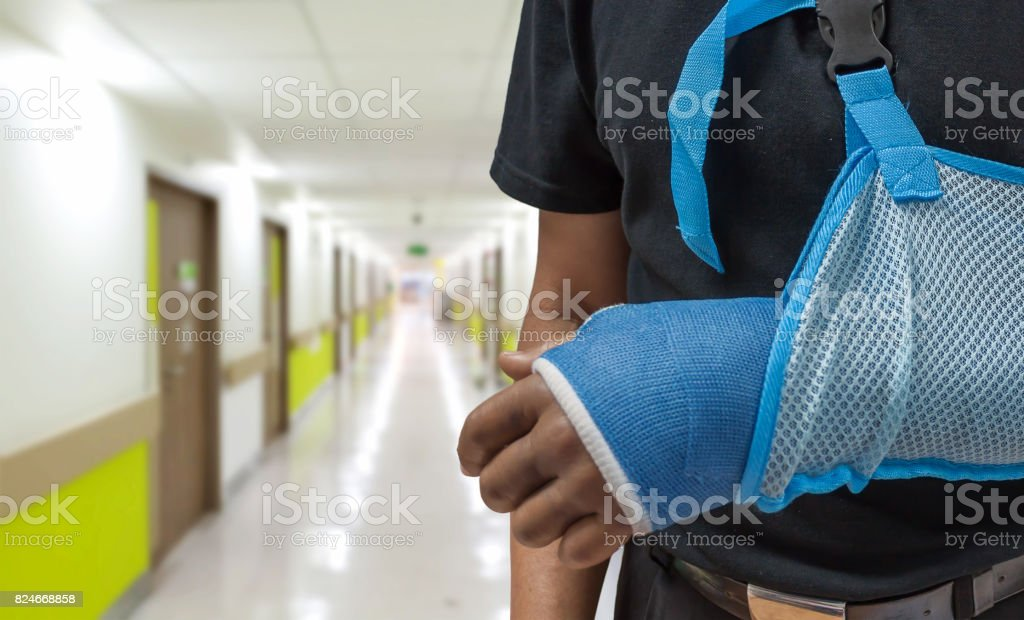 Man broken arm stock photo