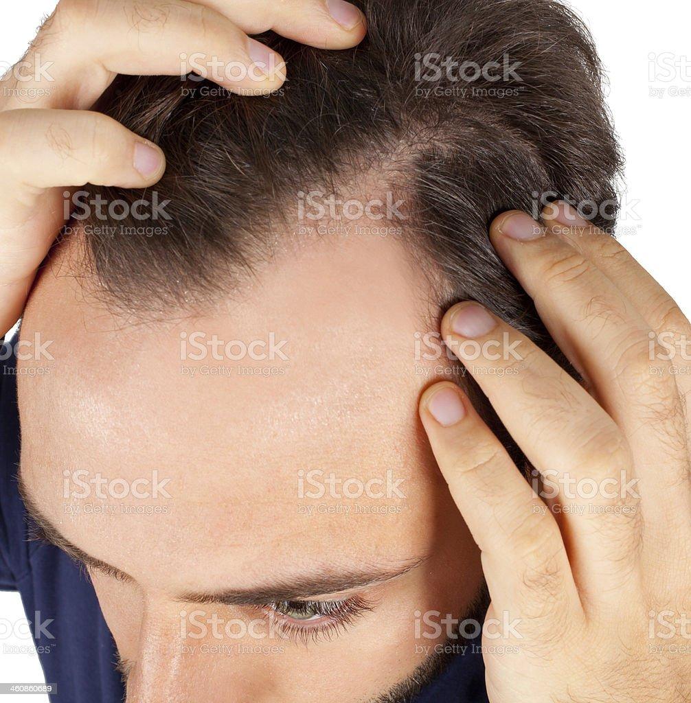 Man controls hair loss stock photo