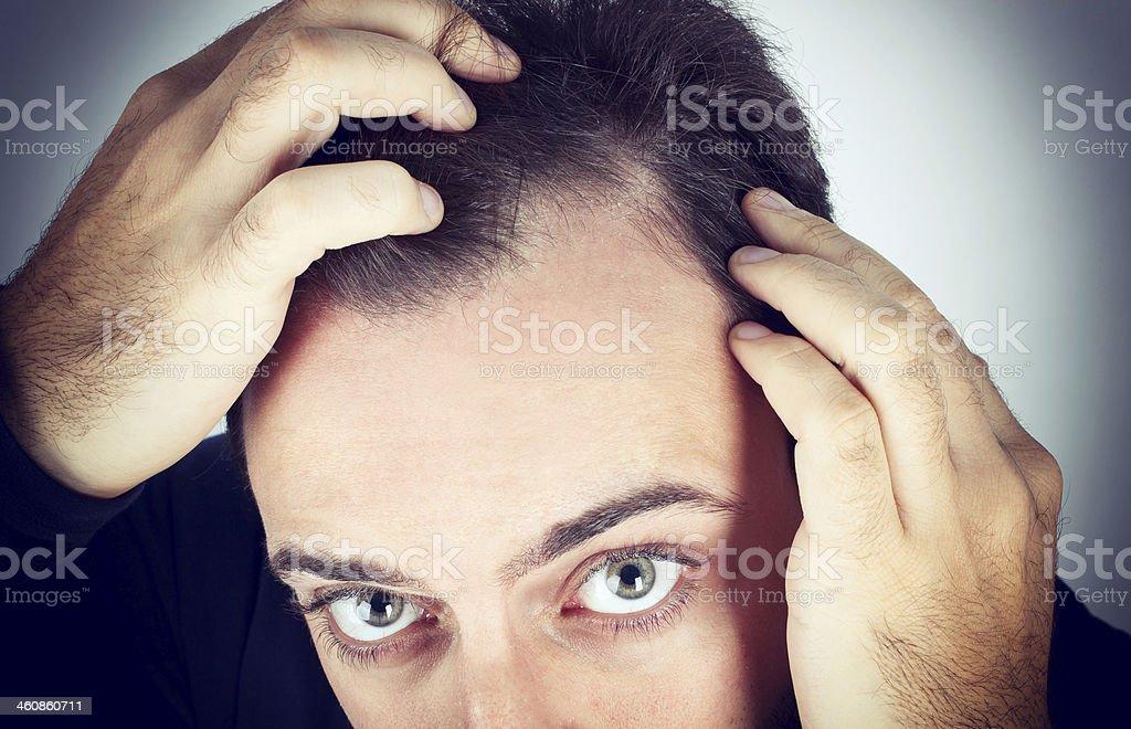 Man controls hair loss Caucasian young man controls hair loss Men Stock Photo