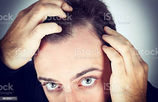 Man Controls Hair Loss Stock Photo - Download Image Now