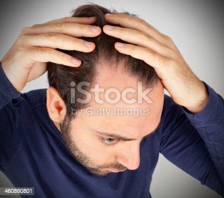 istock Man controls hair loss 460860801