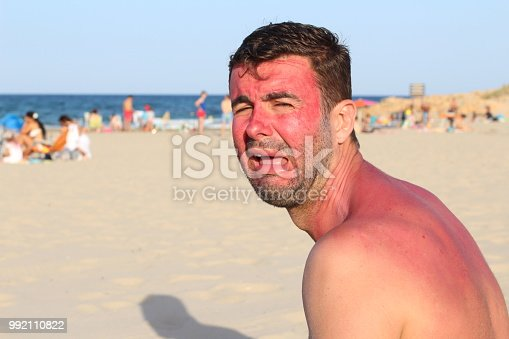 istock Man crying after getting wildly sunburned 992110822