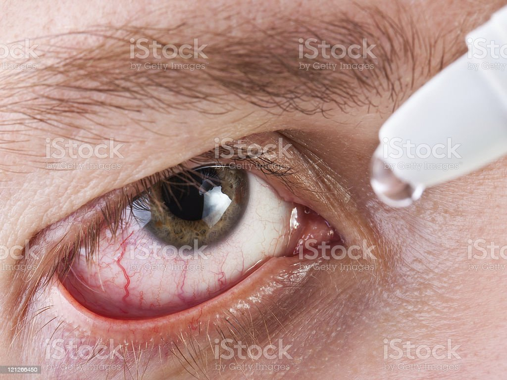 Medizin Augentropfen – Foto