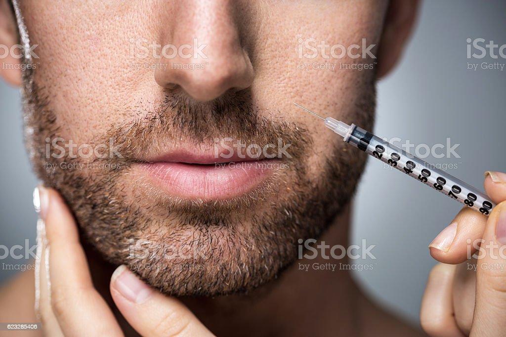 Man during surgery filling facial wrinkles - foto de acervo