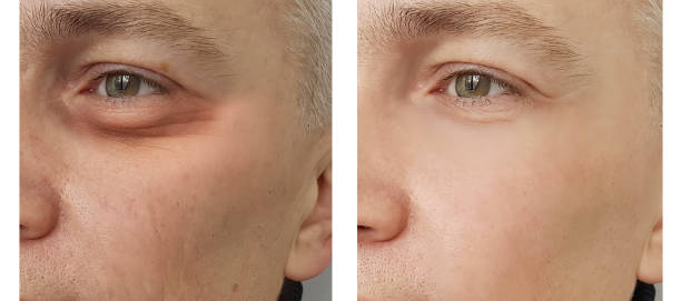 man, eye swollen before and after procedures man, eye swollen before and after procedures antiaging stock pictures, royalty-free photos & images