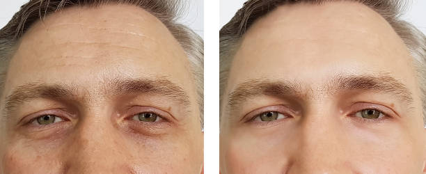 one picture shows a man's under eyes before which is baggy and dark, the second picture is after the product has been used under his eye, which shows his eyes being brighter and less noticeable bags
