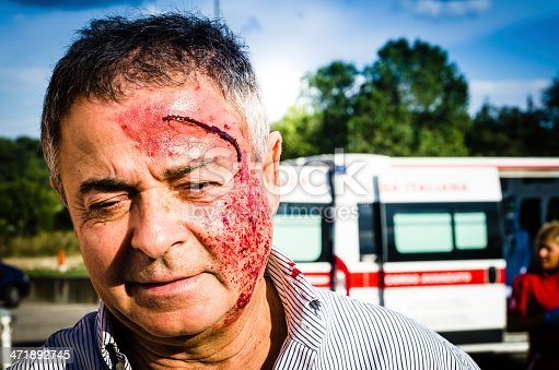 istock Man face after car accident 471892745