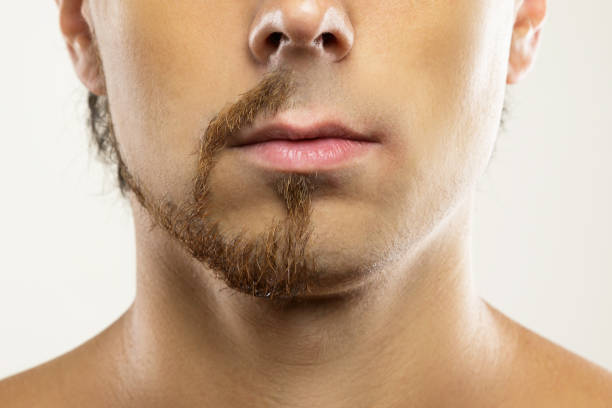 Man face with a partially shaved beard. stock photo
