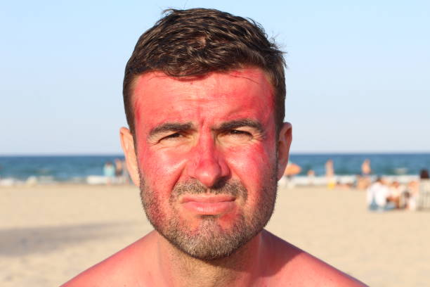Man getting sunburned at the beach stock photo