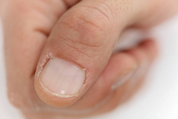 man hands close up, dry cuticle, chapped skin - cuticle stock pictures, royalty-free photos & images