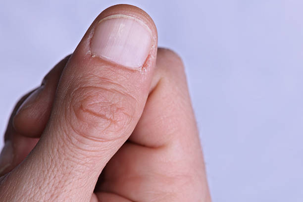 man hands close up, dry cuticle, rough skin care concept - cuticle stock pictures, royalty-free photos & images