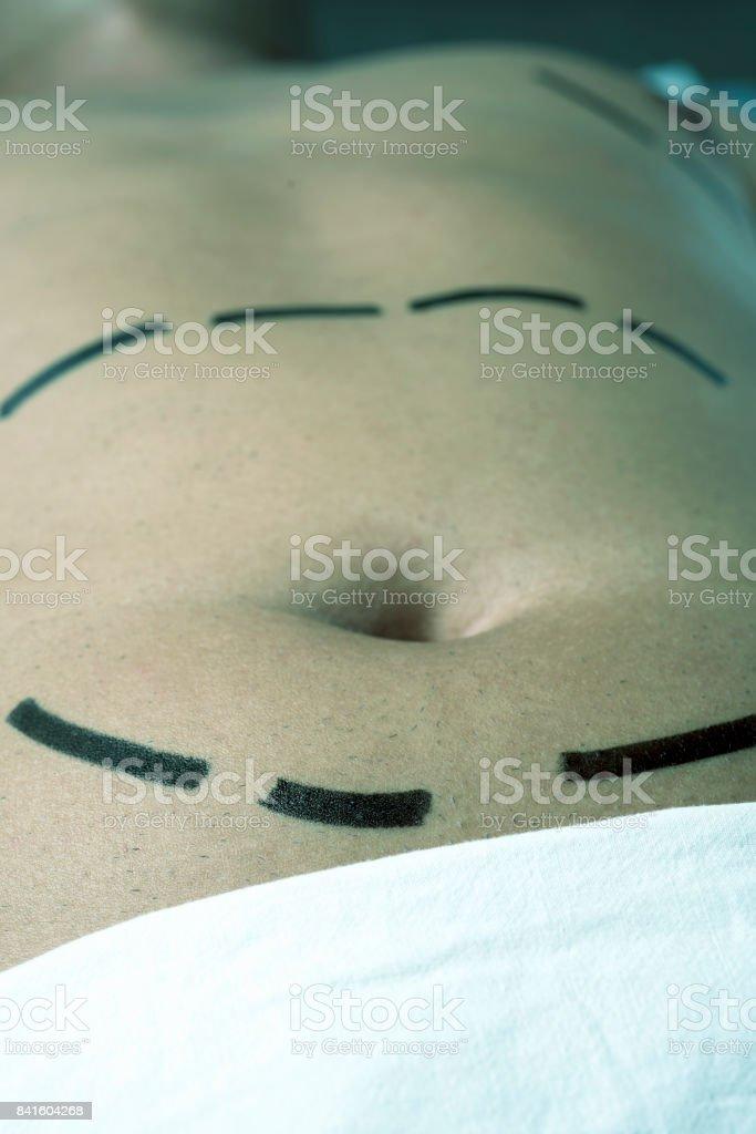 man having a plastic surgery or a liposuction stock photo