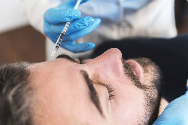 Man having forehead fillers stock photo