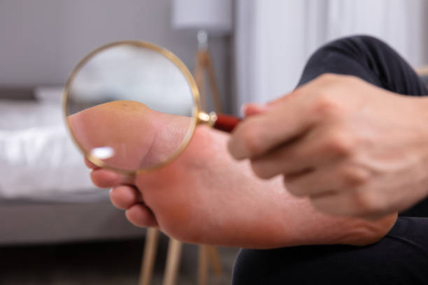 Man Holding Magnifying Glass In Front Of His Feet Close-up Of A Man's Hand Holding Magnifying Glass In Front Of His Feet wart stock pictures, royalty-free photos & images