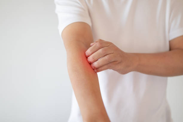 Mann Juckreiz und Kratzer am Arm von juckender trockener Haut Ekmeme Dermatitis – Foto