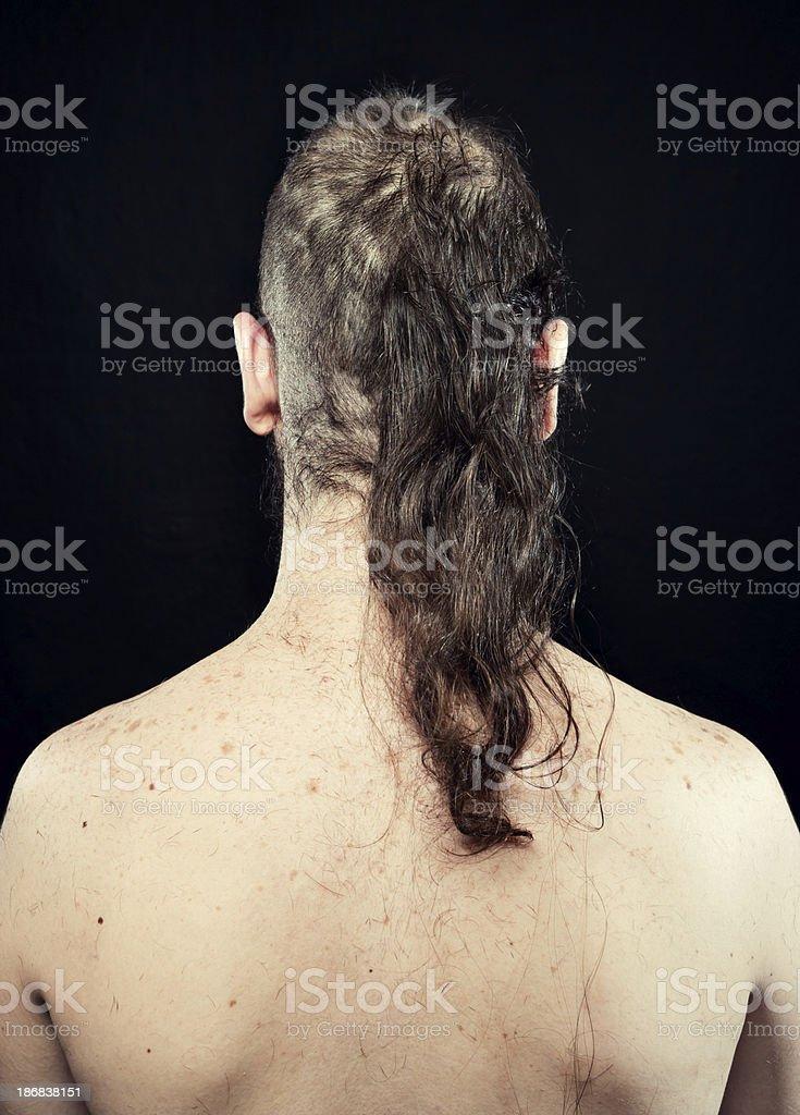 Man loosing hair royalty-free stock photo