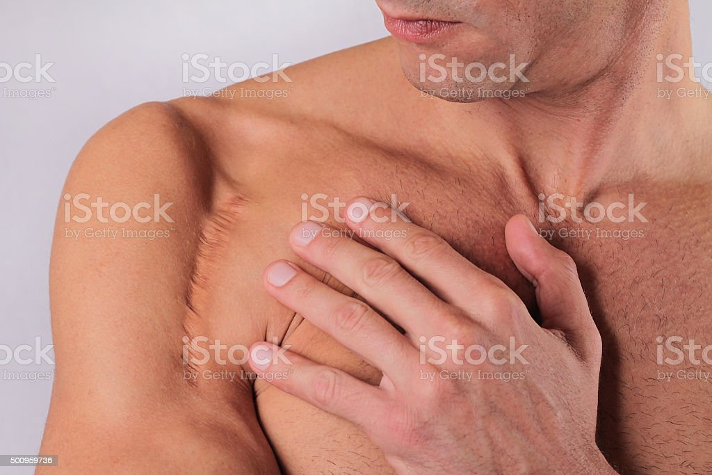 Man man with scar on  hand shoulder. Laser Scar Reduction stock photo