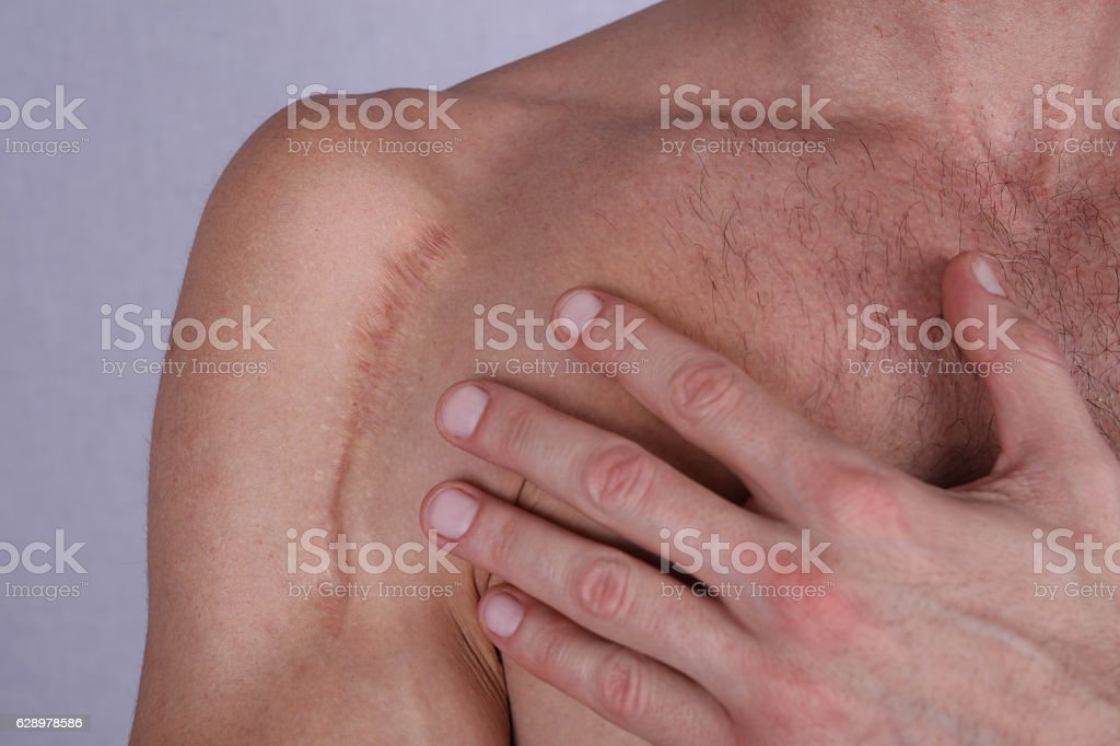 Man man with scar on his shoulder. Laser Scar Reduction stock photo