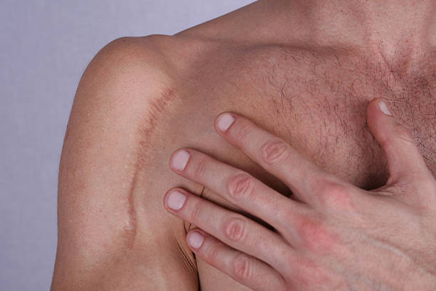 man man with scar on his shoulder. laser scar reduction - shoulder surgery stock photos and pictures
