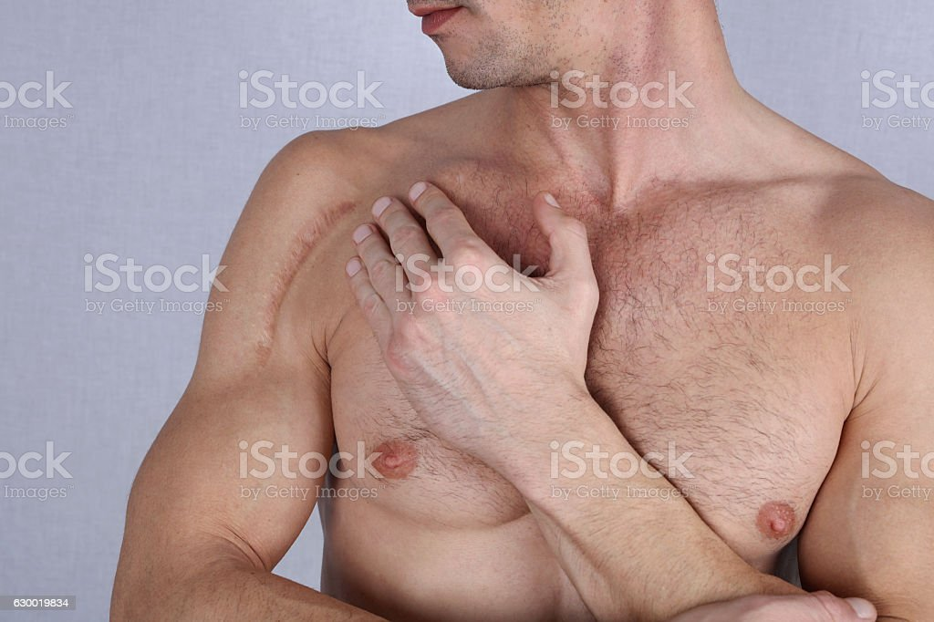 Man man with scar on his shoulder. stock photo