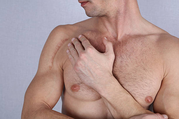 Man man with scar on his shoulder. ストックフォト