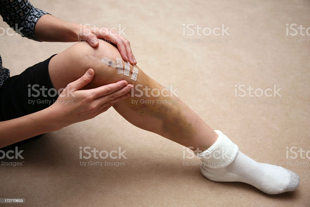 Man massaging area around sutures of a knee injury royalty-free stock photo