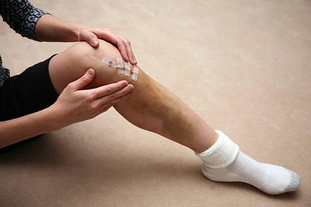 Man massaging area around sutures of a knee injury