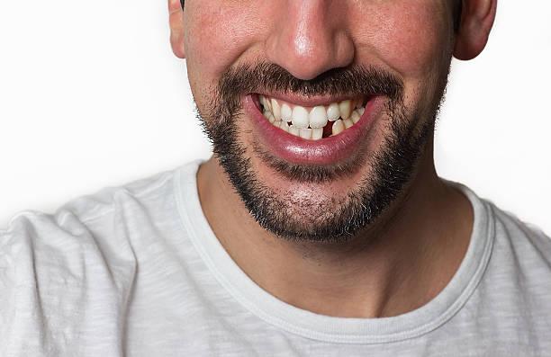 mann fehlende zahn - zahnlücke stock-fotos und bilder