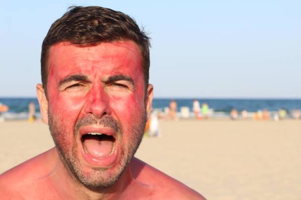 Homem a superexposição de sua pele ao sol - foto de acervo