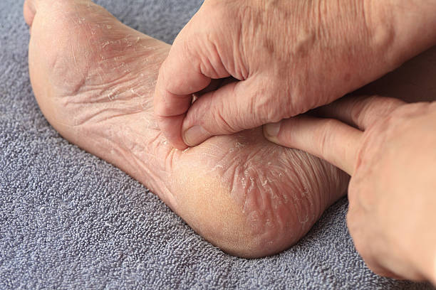 Man peeling dry skin from his foot stock photo