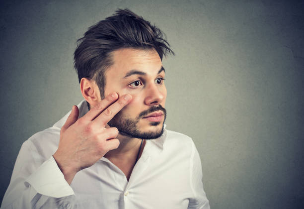 man pulling down eyelid checking his eye looking in mirrow feels unwell has black circles - eyelid stock pictures, royalty-free photos & images