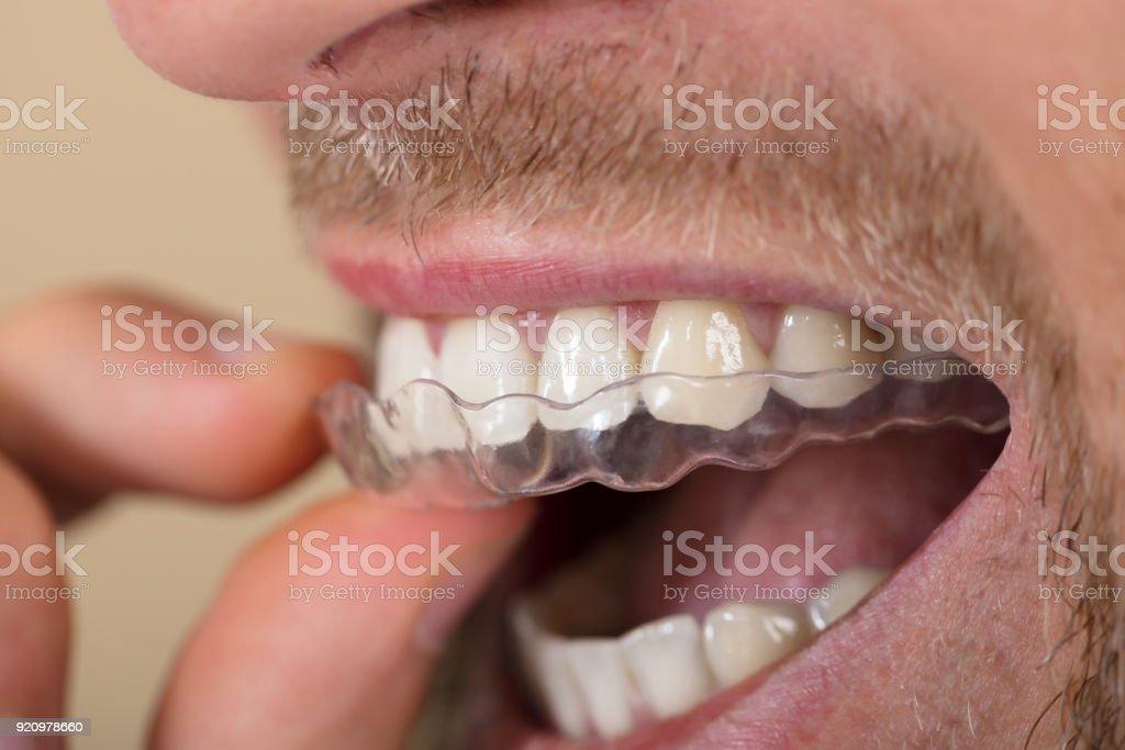 Homem colocando alinhador transparente nos dentes - foto de acervo