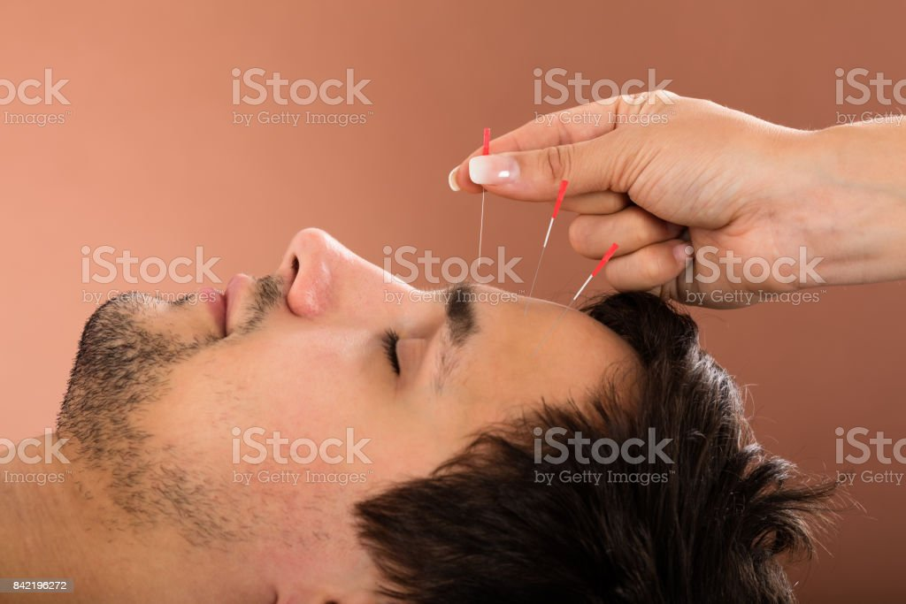 Man Receiving Acupuncture Treatment stock photo