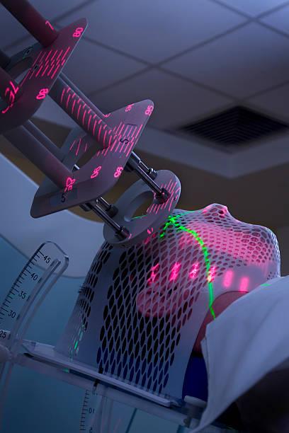 mann bekommen strahlentherapie behandlungsmethoden für krebs - strahlung stock-fotos und bilder