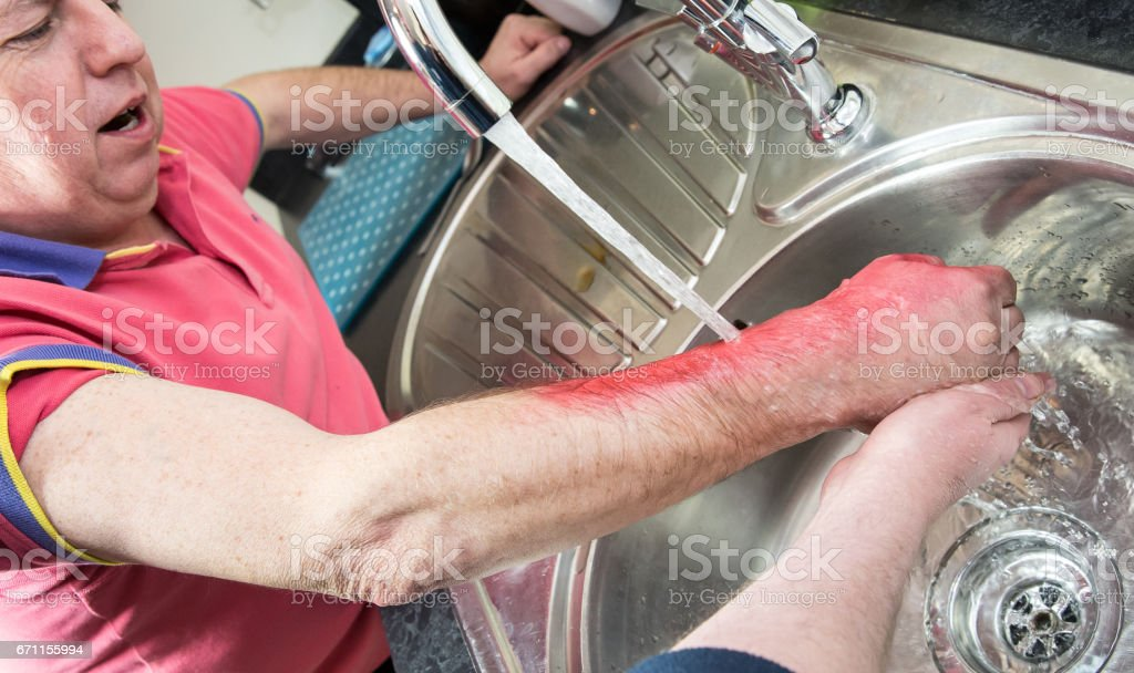 Man scolded in the home being assisted by first aider stock photo